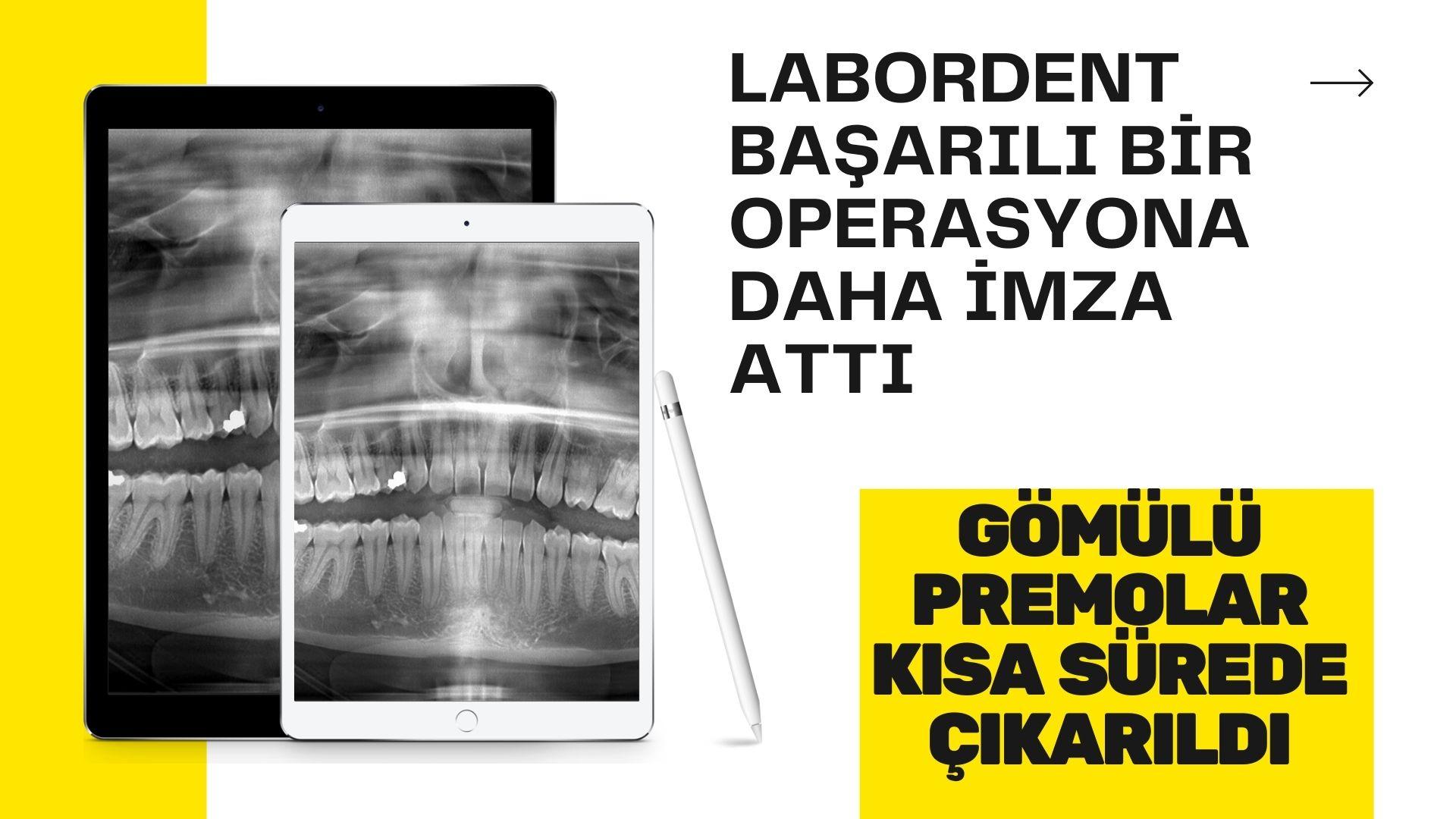 Labordent Diş Polikliniği başarılı bir operasyona imza attı